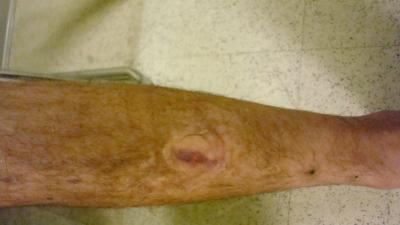 Left Leg, new new angle